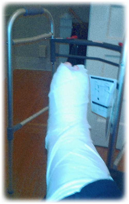 foot in a cast